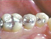 Silver tooth fillings